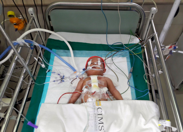 Help Twinkle's Baby Undergo An Open Heart Surgery