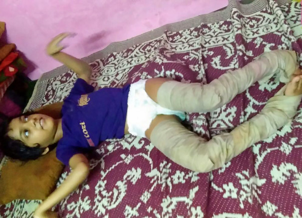 Help Ashifa To Overcome Her Physical Challenges