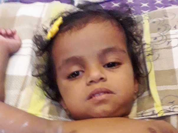 Sayana Krishna Needs Your Support To Fight Multiple Intestinal Atresia