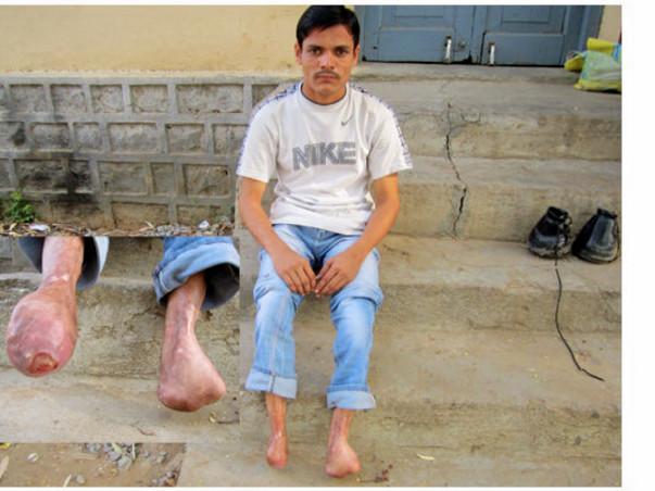 Help Feetless Yadagiri Buy Artificial Limbs