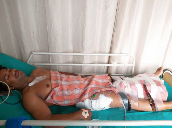 Help Vinod Undergo A Hip Replacement