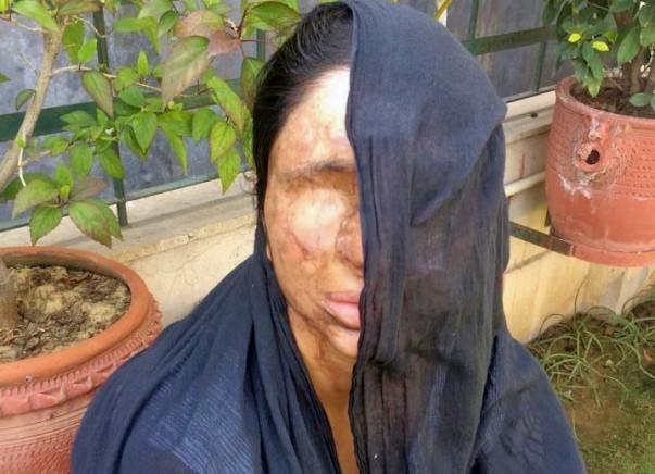 I am fundraising to help acid attack survivor Sheela