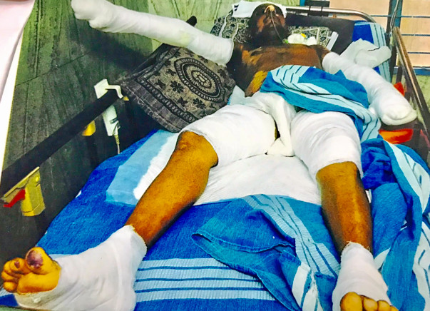 Help Prem Kumar To Recover From Skin Flame Burn