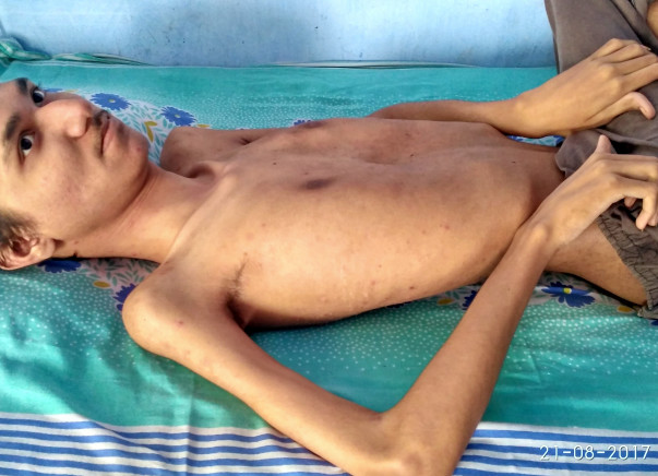 Help Rushit suffering from Muscular Dystrophy (DMD) a genetic disorder