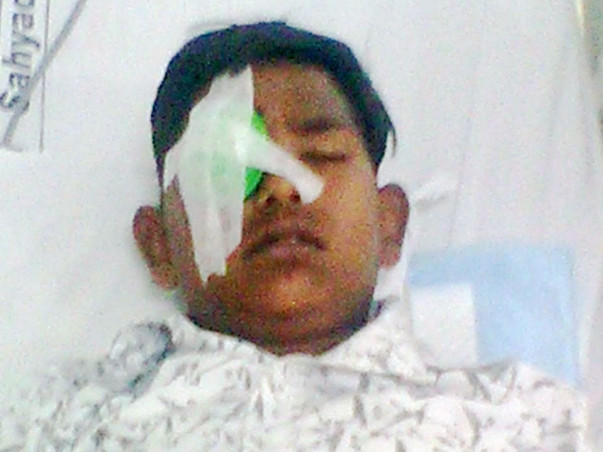 Help Abhay Undergo Removal Of Foreign Object From His Eye's