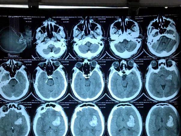 Help Nitesh fight severe brain haemorrhage
