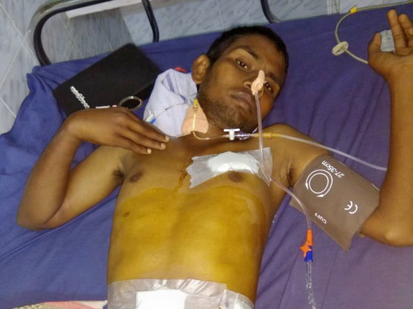 Samba Siva Need emergency surgery