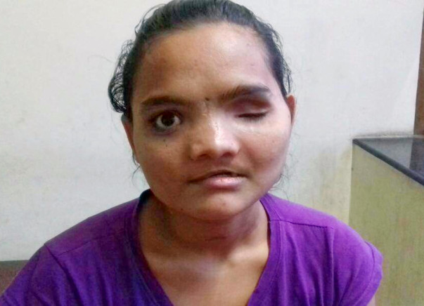 Help Vaishali Reclaim Her Life After A Horrific Accident
