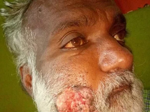 My Father Is Suffering from Oral Cancer  Squamous cell carcino Help us
