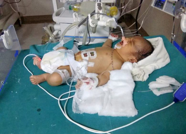 Save Aryan: Suffering from TGA Needs Severe Heart Surgery (8 days old)