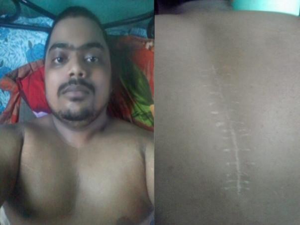 Please help me raise funds for Paraplegia Treatment