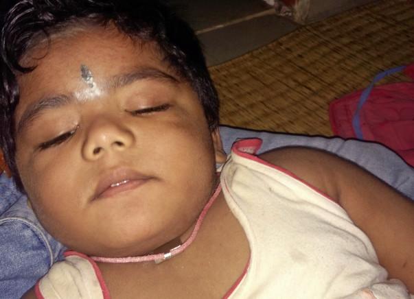 Help Ayush for brain surgery