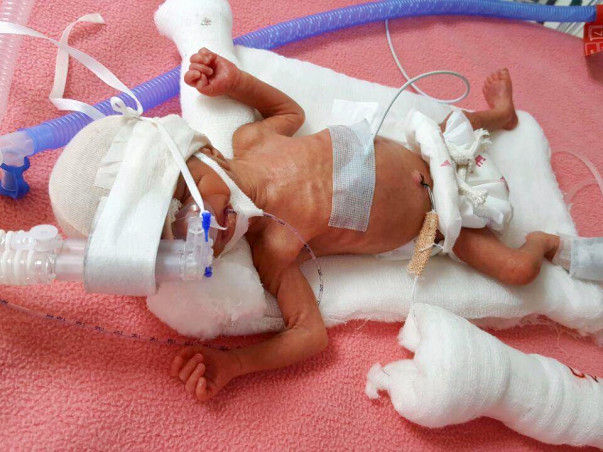 Help a new born fight a battle of life.