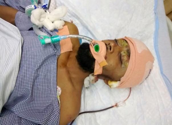 Help Rashmi Ranjan Nayak Recover From His Accident