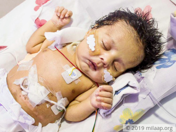 This Baby Boy Born Without Food Pipe Will Die Without Treatment
