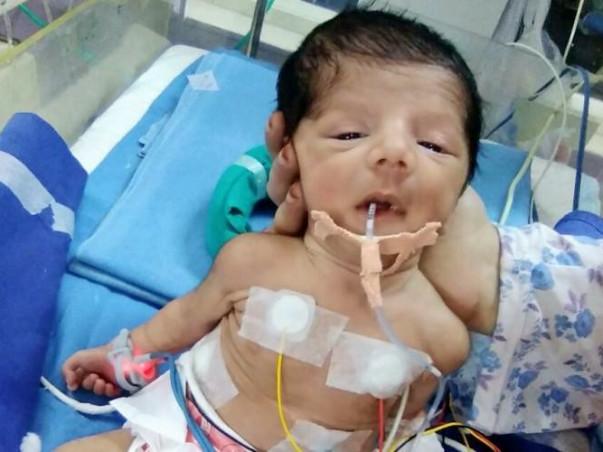Help My Baby Survive