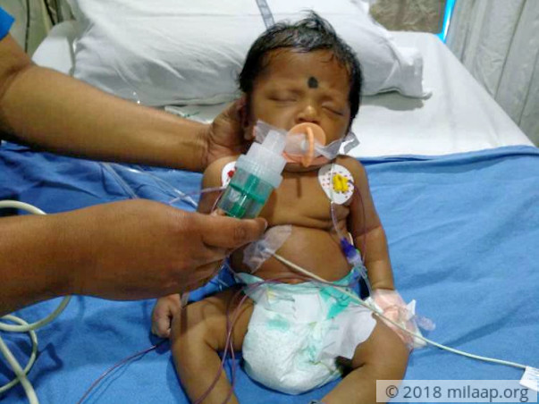 This one-month-old baby needs a heart surgery to survive