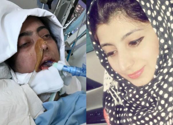 Help My Sister Khadija Get Double Lung Transplant