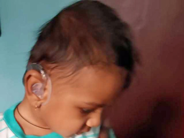 My Son Is Struggling With Bilateral Sensorineural Hearing Loss, Help Him.