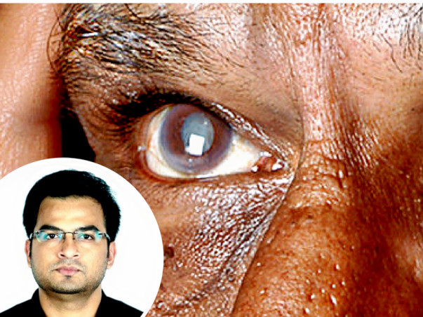 Help This Doctor Perform Free Eye Surgeries For The Poor In Bihar