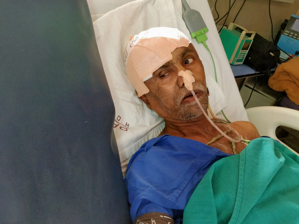 Help my Father to save from Brain Tumor