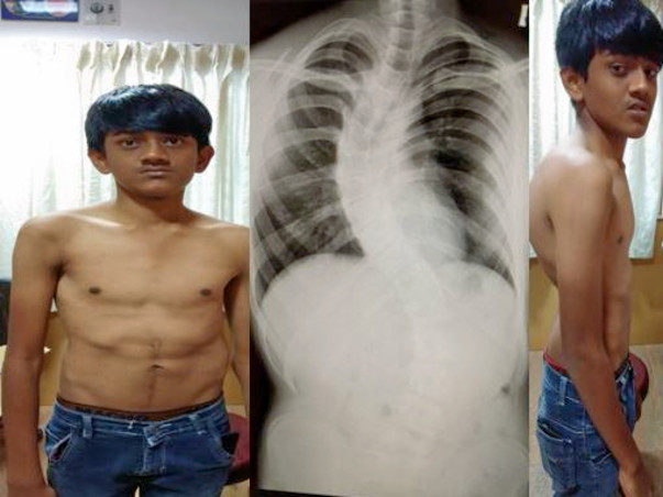 Help 18 Year Old Engineering Student Undergo Spinal Deformity Surgery