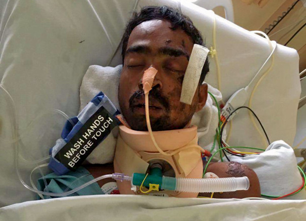 Help Accident Victim, Gautam Kamble Undergo A Crucial Surgery