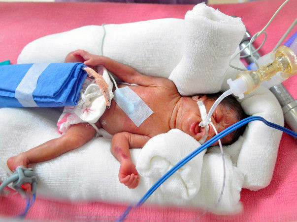 Help Akshaya and Mayur save their prematurely born twins