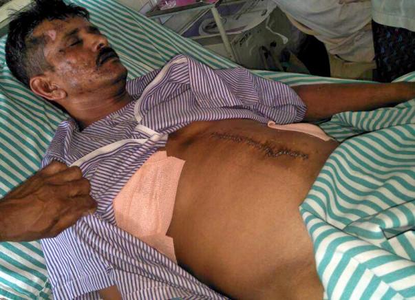 Help Srinivas to undergo MDCT Chest surgery