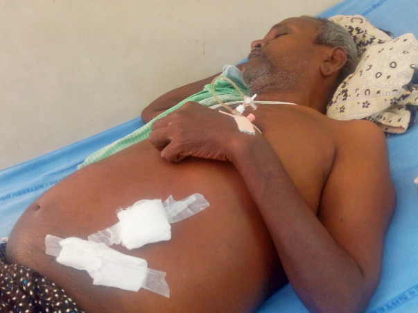 Help my father to get liver transplant