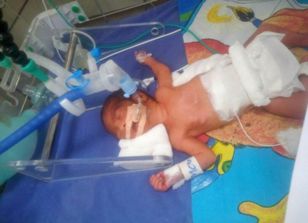 Hi friends, Requesting help for baby
