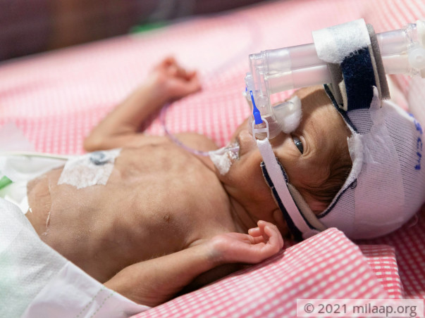 Help Baby of Mamatha to fight disease
