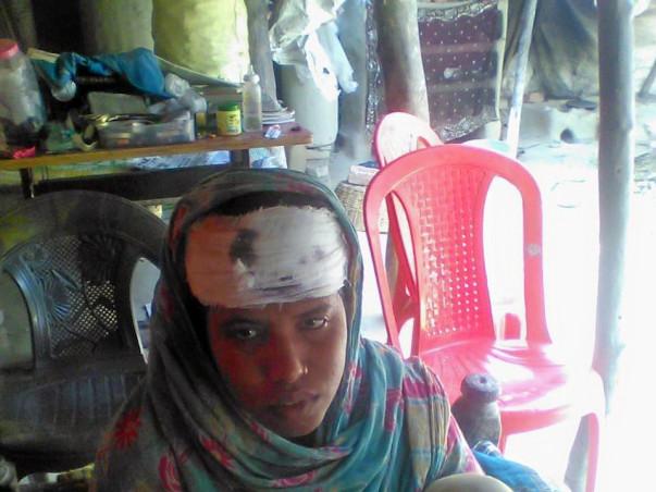 Multiple Injuries on the Head