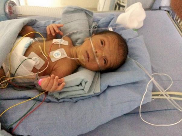 Help Preterm Baby Survive