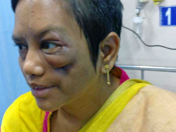 Help for My Mom who met with accident