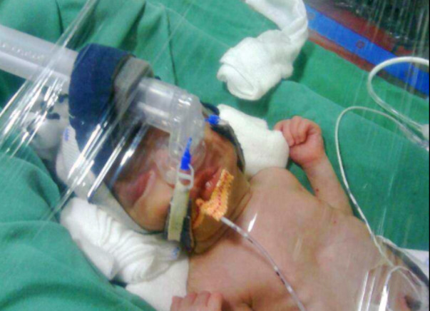 """Baby Mehek-born at 32 weeks gestation pleads : """"HELP ME FIGHT TO LIVE"""""""