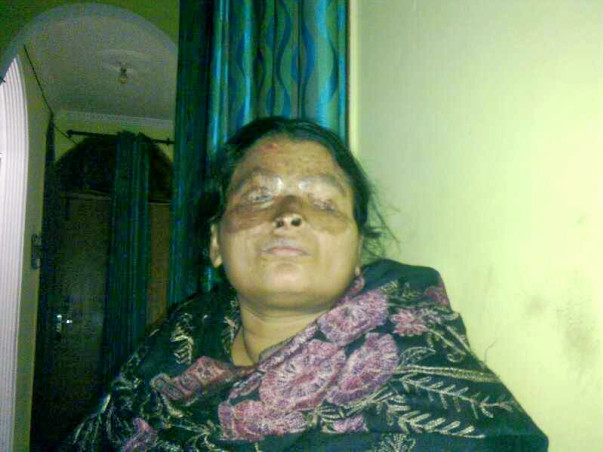 Fundraising to  help acid attack survivor Anu undergo a medical surgery. Join this cause!