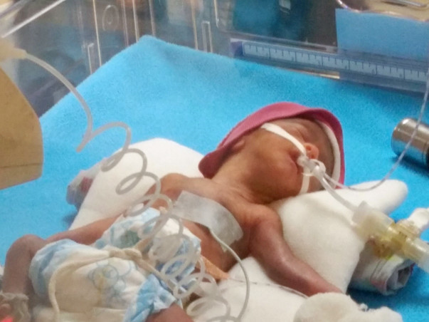 Help for extremely Premature baby