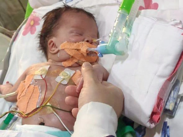 26 Days Old Baby Needs Your Help Fight Hydrops with chylothorax