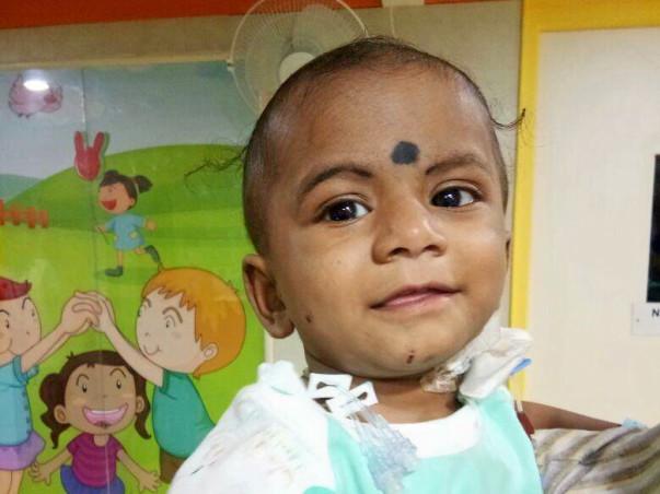 Help baby Likitesh undergo a liver transplant