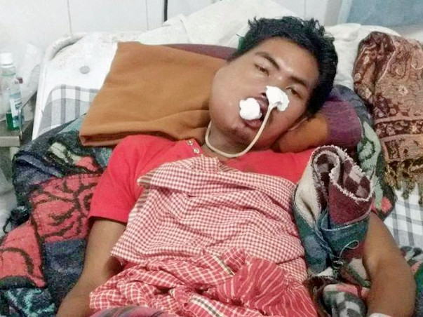 Help Rahendra to fight against Angiosarcoma