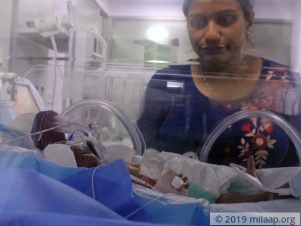 Baby of Sandhyarani needs your help to survive