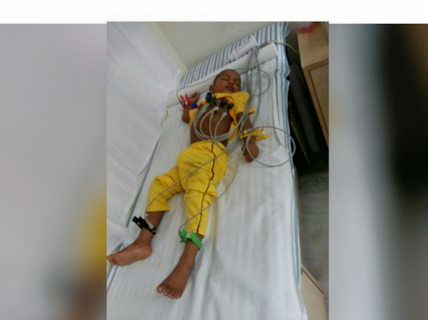 Baby Who Barely Survived One Surgery Needs To Go Under The Knife Again