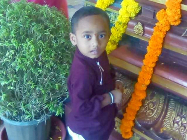 Help 3-year-old Pranay Recover From Burns