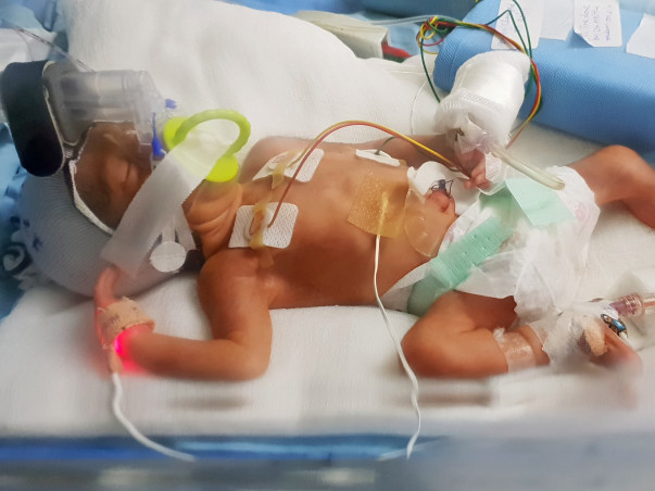 Help Our Baby Daughter Get Treated in NICU