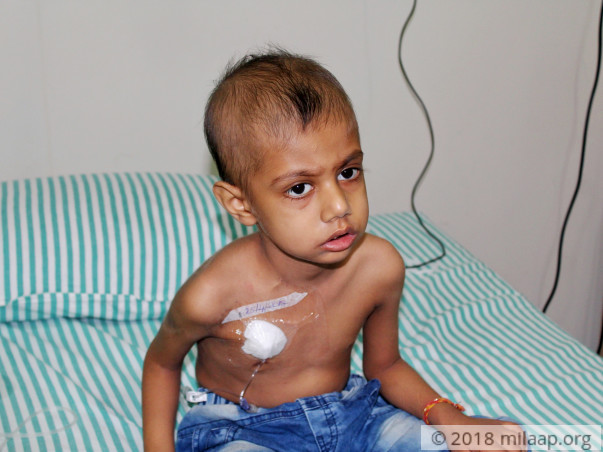 Help this 3-year-old boy fight blood cancer