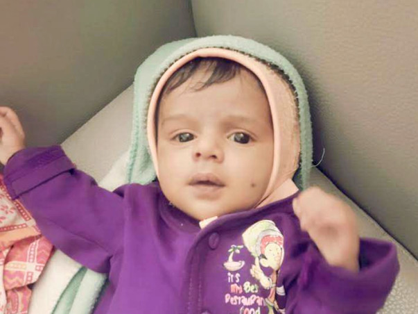This 60-day-old baby needs an urgent surgery in the next 48 hours.