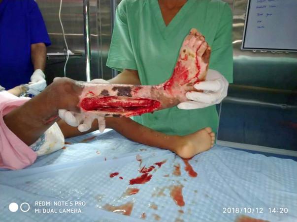Help Hemanth to fight Gangrene