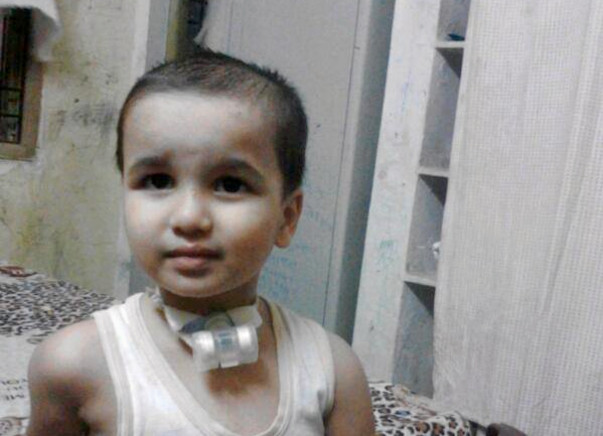 'Help Jathin fighting with major breathing problem'