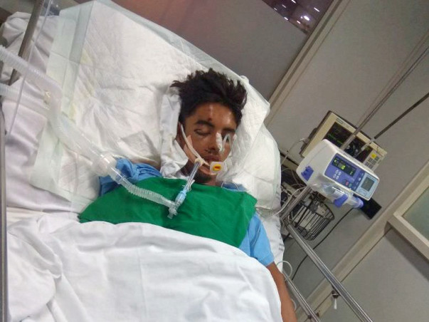 Help Sonali Save her Brother Who Met With A Tragic Road Accident